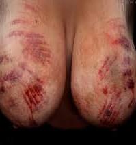 bryst-tortur bdsm